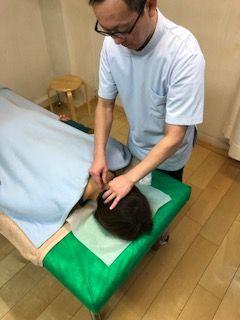 首の鍼灸施術