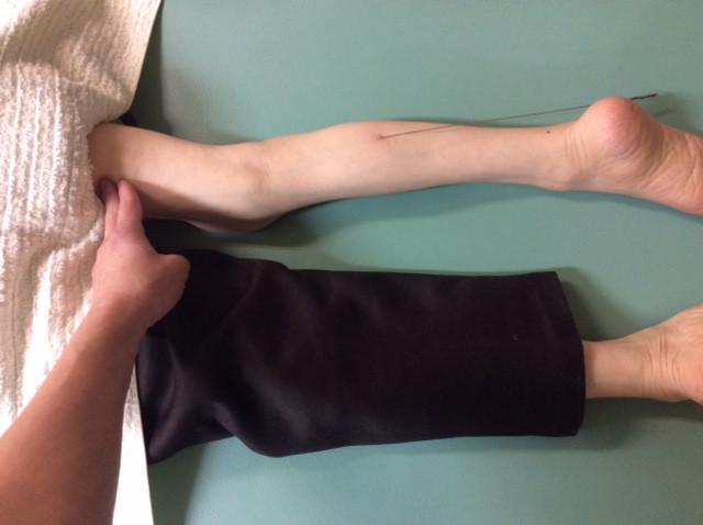 脚のマヒの巨鍼